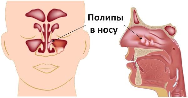 Полипы в носу - лечение без операции