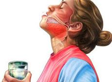 Полоскание горла от ангины