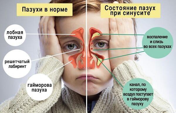 Желтая жидкость из носа при синуситах