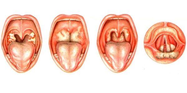 Рыхлые миндалины фото у взрослых