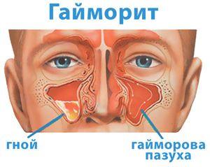 Как происходит диагностика