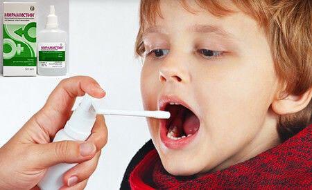 Мирамистин от белого налета в горле