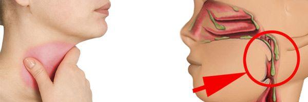 Как лечить слизь в горле и избавиться от нее навсегда