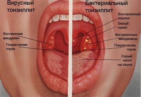 Как лечить хронический тонзиллит?