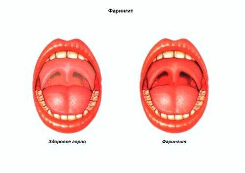 Красная задняя стенка горла: причины и лечение