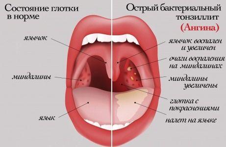 Постоянно красное горло - лечение по советам доктора Комаровского