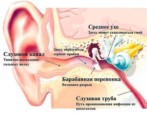 Причині прострелов в ушах