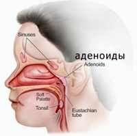 adenoidy