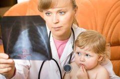 pnevmonijya u detej