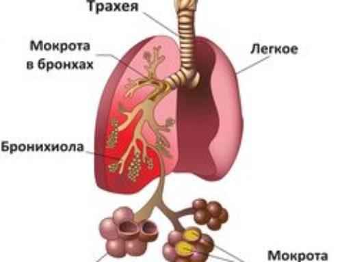 Причины мокроты в горле – откуда появляется, почему и что делать
