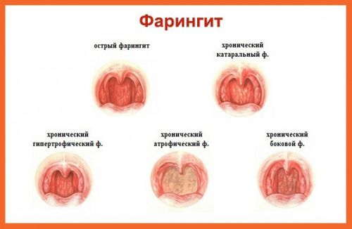 faringitt