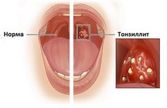 tonsilitt