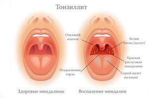 tonsilllittt