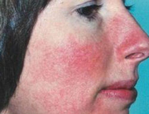 Покраснение носа – что это, причины и лечение