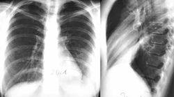 Затемнение в легких на рентгене у взрослых