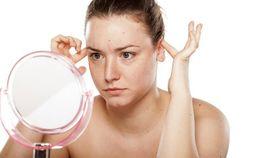 Лопоухие уши – как исправить без операции в домашних условиях
