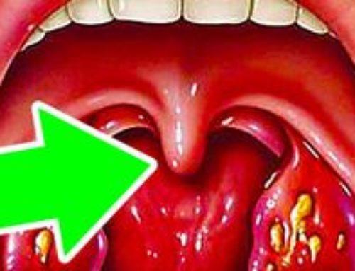 Язычок в горле увеличился и касается корня языка – что делать, как лечить