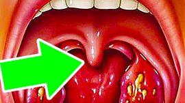 Увеличился язычок в горле (увулит)