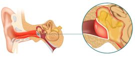 Почему пульсирует ухо без боли