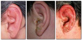 Ушные капли при отите: какие лучше капли в уши при отите для детей и взрослых